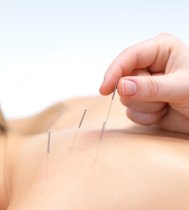 Acupuncture needles being inserted into someone's neck