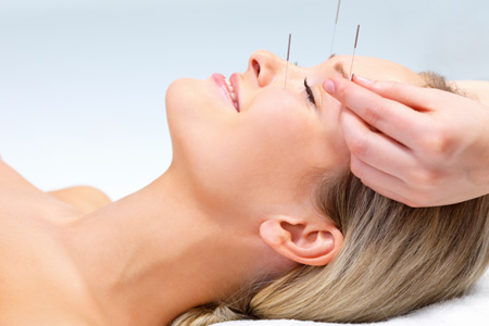 A woman with acupuncture needles in her face for cosmetic purposes